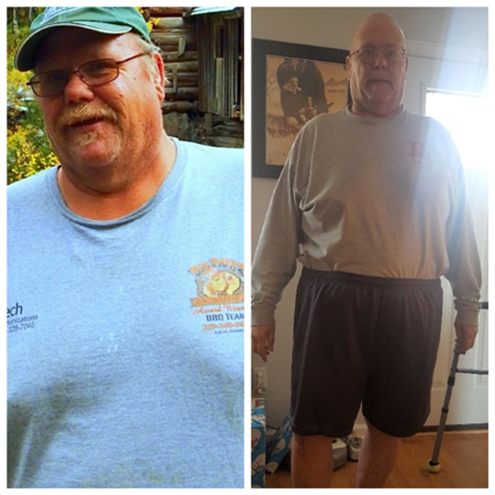 Duane-Orlosky-Before_After450_2